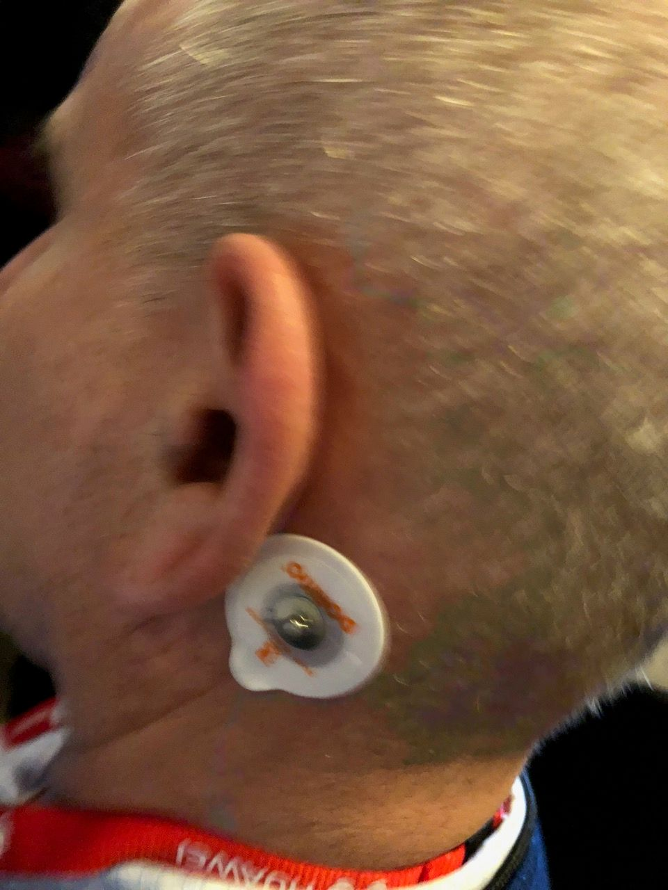 To wear the Modius headset, you need to stick electrodes
